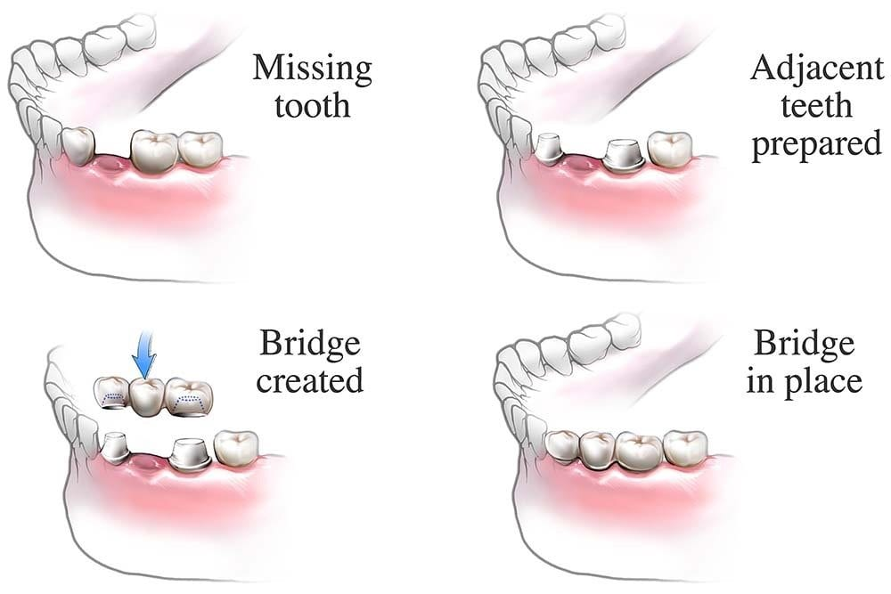 Dental Bridge Procedure - used by Alrewas Dental Practice - your local dentists in Burton on Trent, Fradley, Alrewas & Barton under Needwood