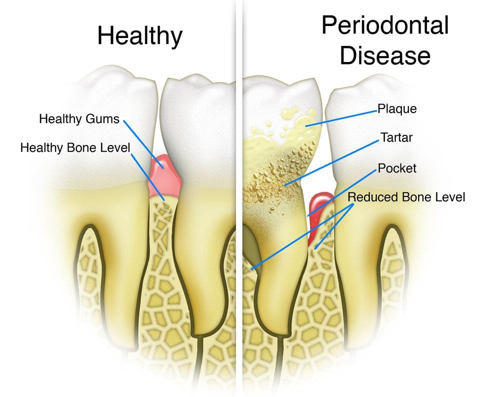 Periodontal Gum Disease Treatment Infographic Comparing healthy gums and teeth with gum disease. Shows reduced bone levels compared to healthy gums and build up of plaque and tartar together with receding gums. Alrewas Dental Practice near Burton on Trent and Barton under Needwood are dentists specialising in gum disease treatment