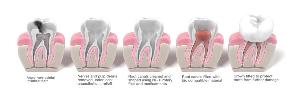 Root Canal Treatment Stages infographic (Stage 1 - Angry inflamed Tooth, Stage 2 - Nerves and pulp debris removed under local anaesthetic for relief, Stage 3 - Root canals cleaned and shaped, stage 4 - root canals filled with bio compatible material, stage 5 - crown fitted to protect the tooth from further damage) from Alrewas Dental Practice Near Burton on Trent